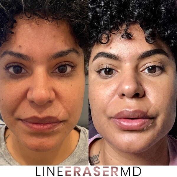 lip filler NJ treatment