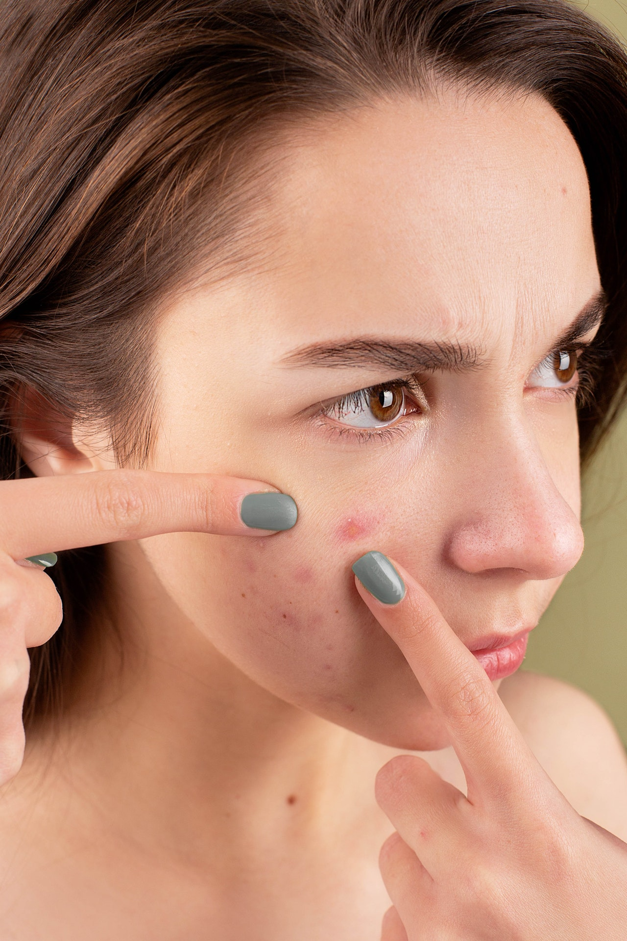 the difference between juvederm and botox