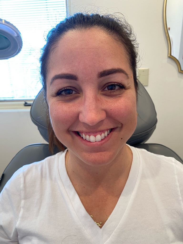 Gummy smile botox before and after