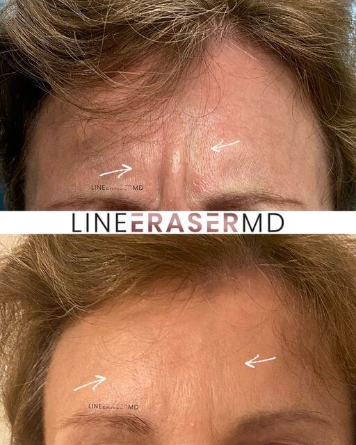 forehead lines botox before and after
