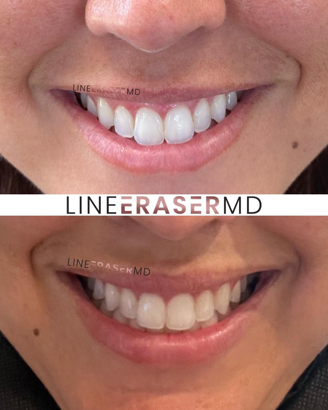 gummy smile botox treatment NJ