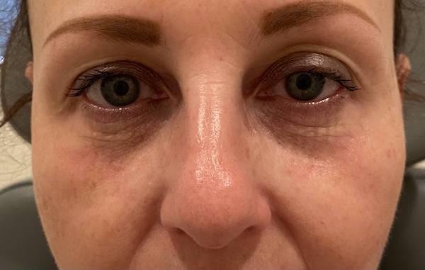Before under eye filler