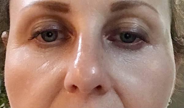 After under eye filler