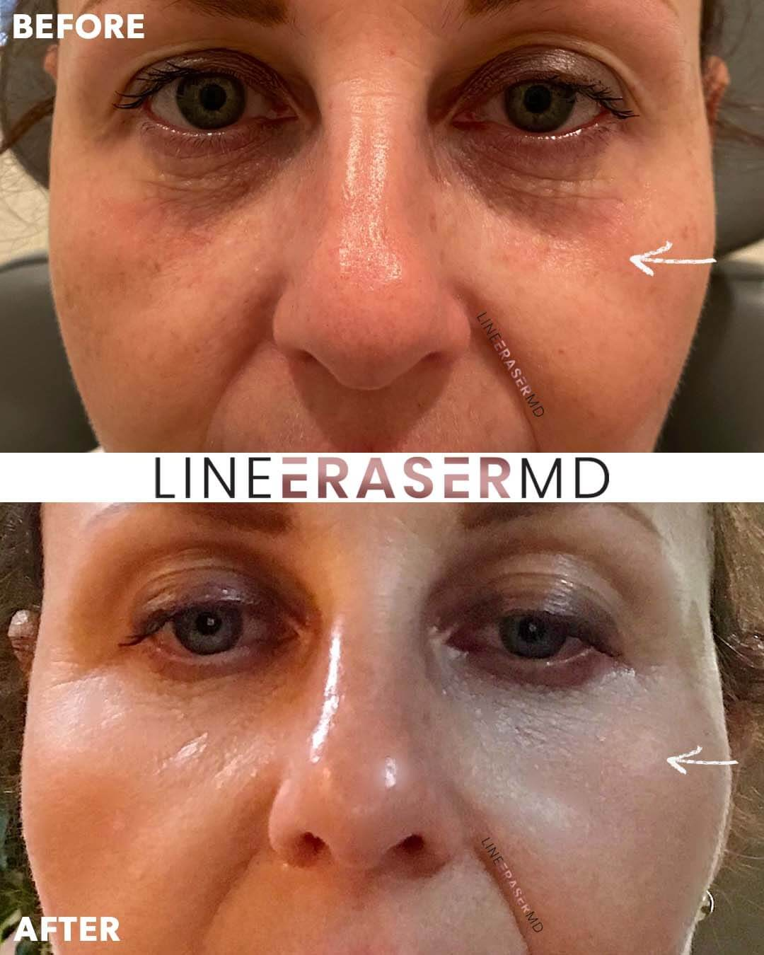 before and after botox eye filler
